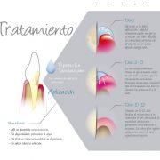 Gelcide-tratamiento