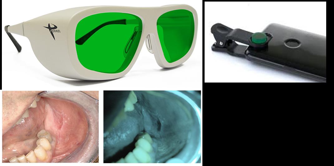 Gafa para Detección del Cáncer Oral